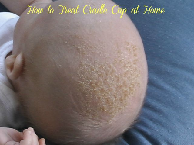 How to Treat Cradle Cap at Home